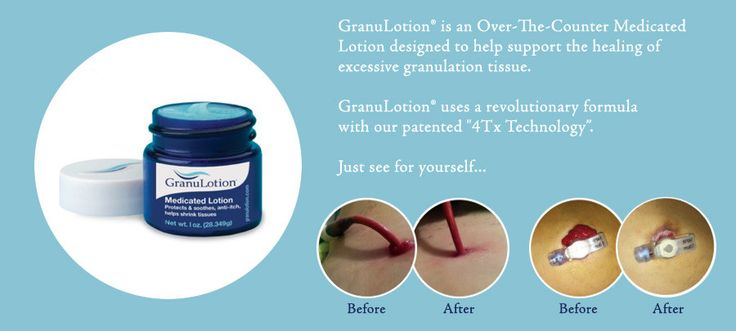 GranuLotion® - OTC Medicated Lotion - Helps Shrink Tissues! - Supports Healing of Granulation Tissue!