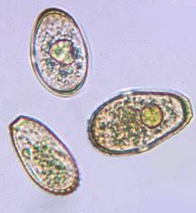 "urediniospore (also urediospore, uredospore)  : the asexual, dikaryotic, often rusty-colored spore of a rust fungus, produced in a structure called a uredinium; the ""repeating stage"" of a heteroecious rust fungus, i.e. capable of infecting the host plant on which it is produced (Puccinia graminis)"