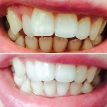 Eatable Teeth Whitening Products Oral Health #oral…