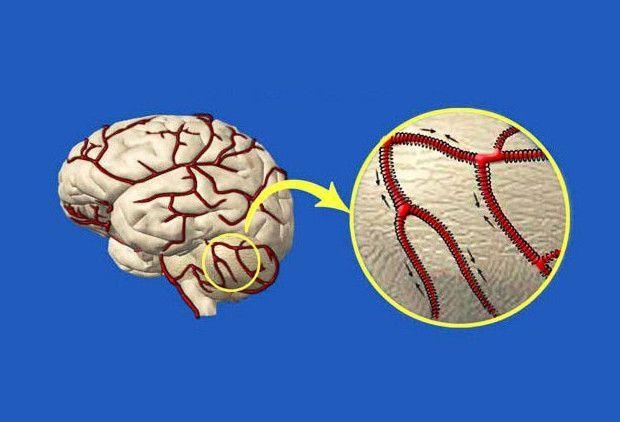 Как очистить сосуды головного мозга... Мощные рецепты народной медицины!