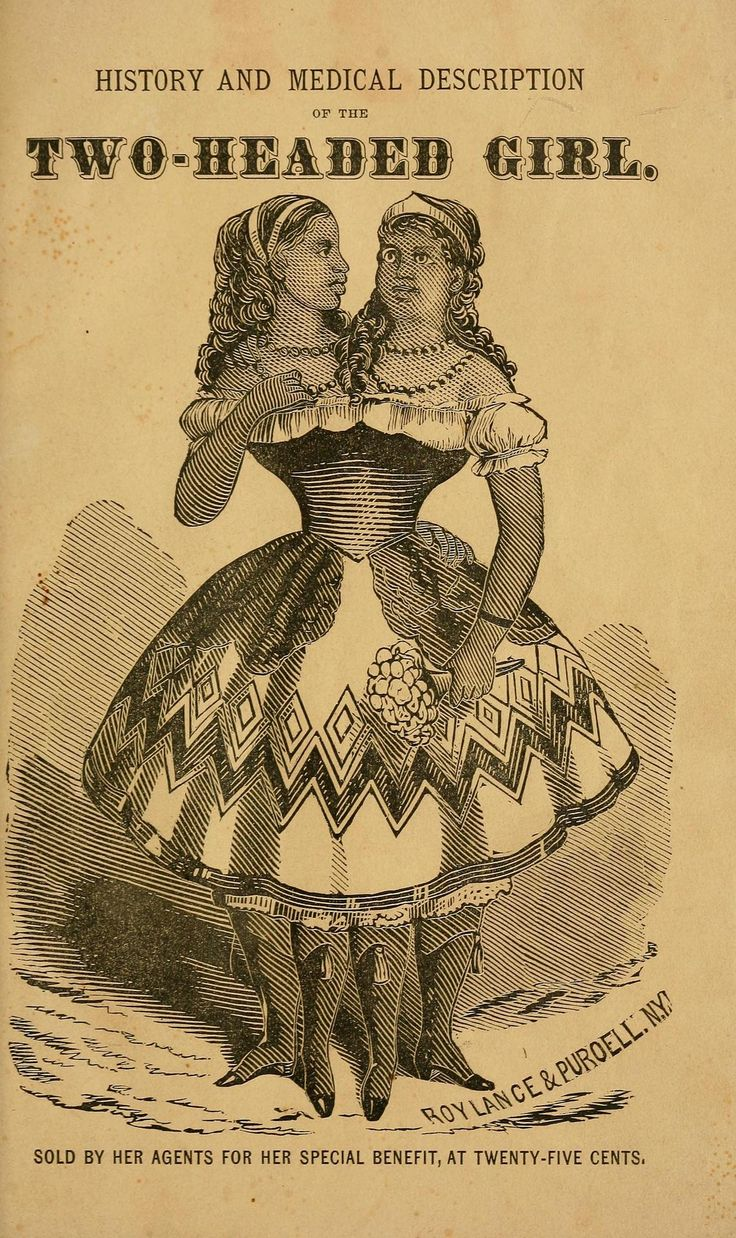 History and medical description of the two-headed girl : sold by her agents for her special benefit, at 25 cents (1869)  Millie and Christine McCoy (1851-1912)  (Source: archive.org)