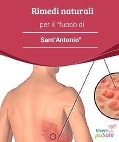 """Rimedi #naturali per il """"fuoco di Sant'Antonio"""" Consigli e #rimedi naturali per #trattare #l'herpes zoster, più conosciuto come fuoco di #Sant'Antonio"""