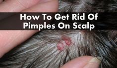 a lot of people who suffer from scalp acne but they are a bit unsure about how to treat it.10 home remedies to get rid of pimples on scalp(scalp acne) fast #howtogetridofpimples