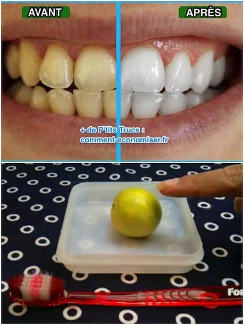 Une Astuce Étonnante Pour Avoir les Dents Blanches Naturellement.