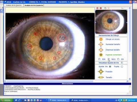Demostración del Sistema AIGAL:     Software de localización de los signos en el iris.    Basado en la topología de Bernard Jensen.