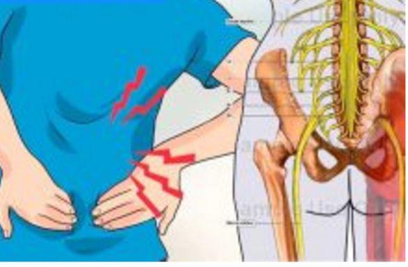 El nervio ciático es aquel que se extiende desde la espalda baja o bien columna lumbar hasta los pies. Cuando se manifiesta un dolor en este nervio, puede llegar a provocar dolores muy intensos que