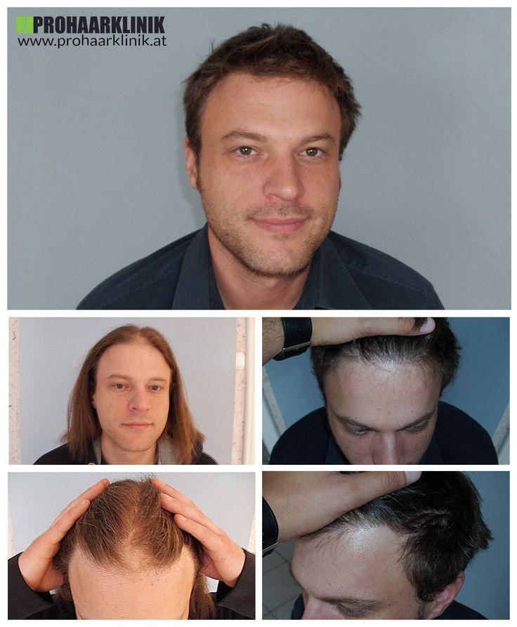 http://www.prohaarklinik.at/haartransplantation-vorher-nachher-bilder/  Nach der Haartransplantation - PROHAARKLINIK  Herr Szalai wurde an einem nicht typische Art und Weise Haarausfall. Er hatte eine recht große Glatze Stelle in der Mitte der Haaransatz und in den beiden Tempeln. Die Bilder sprechen für sich wurde die Transplantation extrem dicht gemacht. Bei dem PROHAARKLINIK durchgeführt.