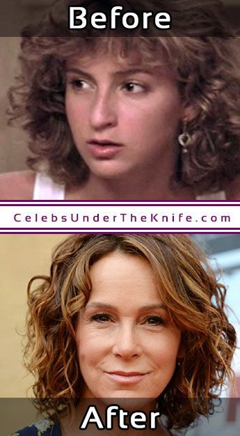 Jennifer Grey Nose Job Photos Before After #celebsundertheknife #celebs #celebrity #plasticsurgery #celebritysurgery