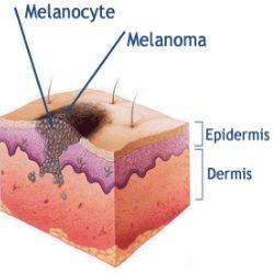 Melanoma, #Melanoma Skin Cancer