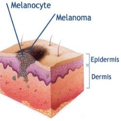 Types of skin cancer essay