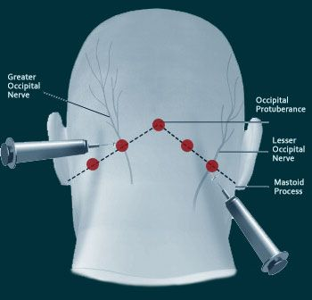 Had my second set of injection today. I have gone 6 weeks migraine free. This has been the best thing I have done since I have started fighting my migraine battle over 11 years ago. Greater occipital nerve block injections. I will not lie the injections do hurt but 5-10 minutes of pain is worth the end result. You will be sore and have pain for 4 days after but still worth it!