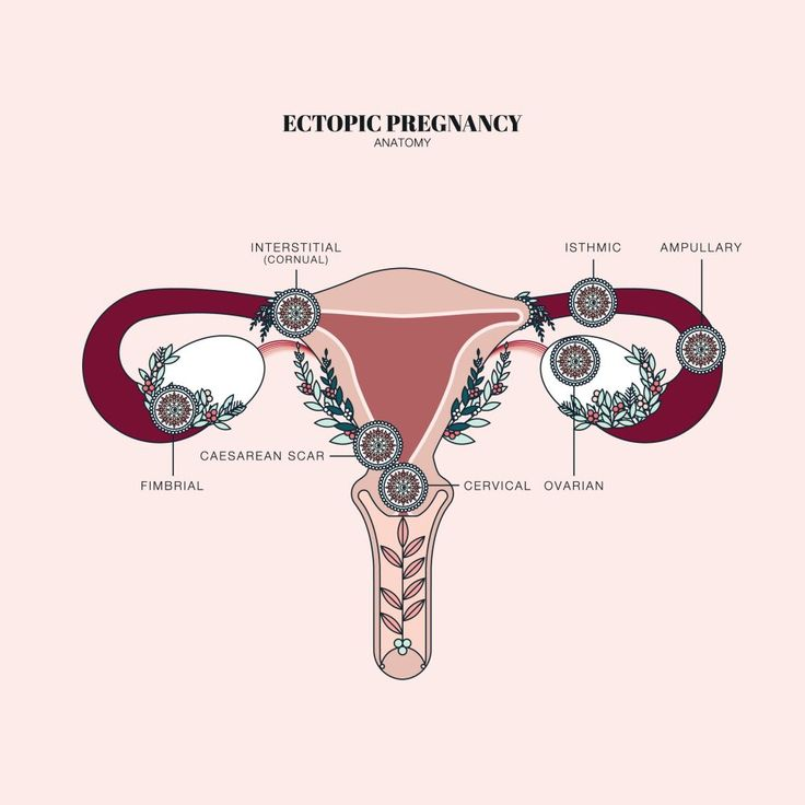 ectopic pregnancy and age However, tubal ectopic pregnancy in an unstable patient is a medical emergency that requires prompt surgical intervention the purpose of this document accurate gestational age calculation, rather than an absolute hcg level, is the best determinant of when a normal pregnancy should be seen within.