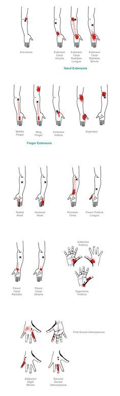trigger point referral pain patterns for the hand & wrist                                                                                                                                                     Mehr