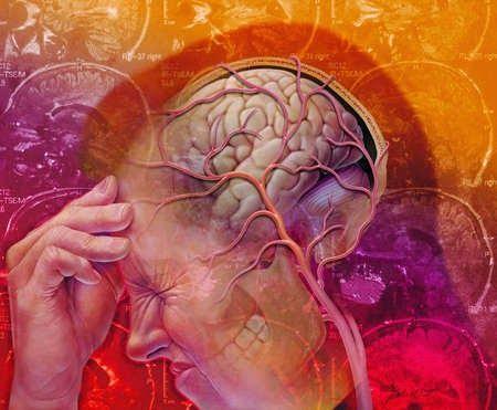 Acupunctuur en de behandeling van migraine