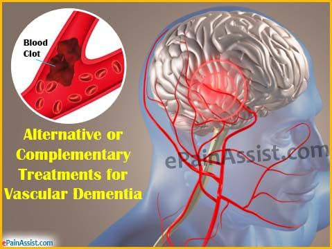 Alternative or Complementary Treatments for Vascular Dementia Read: http://www.epainassist.com/alternative-therapy/alternative-or-complementary-treatments-for-vascular-dementia