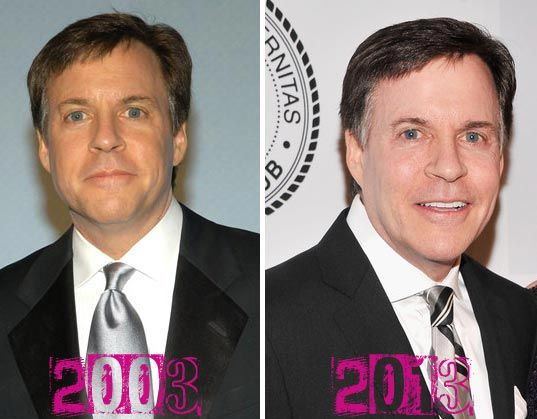 Bob Costas Plastic Surgery - Good Eye Surgery & Facelift - http://plasticsurgerytalks.com/bob-costas-plastic-surgery/