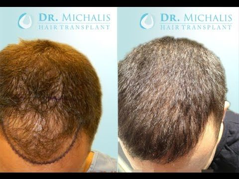 3525 Grafts FUE Hair Transplant unshaven respectively without shaving head/recipient area: for more information visit our website: http://www.hairtransplant-drmichalis.com/real-cases/