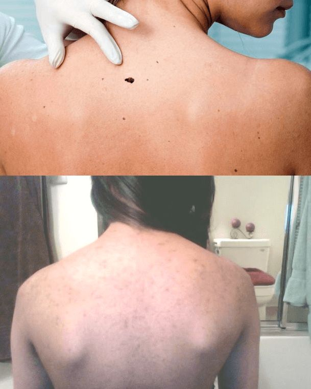 How to Get Rid of Back Pimples Naturally Fast...tips...review... define health plan...and scars...in a week...quickly...prevent body acne men...zits...