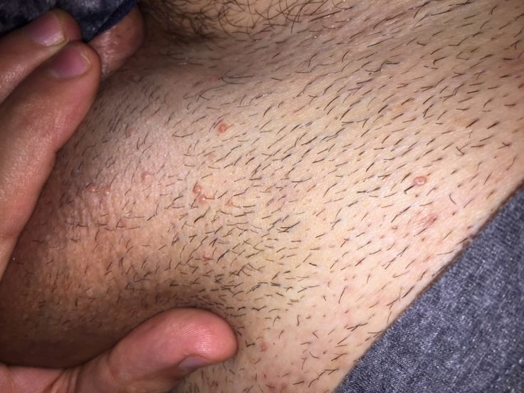 Genital herpes – infection, symptoms and other causes