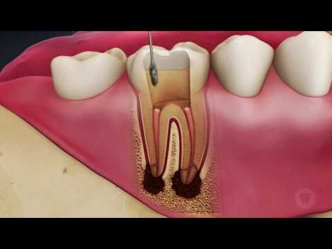 Board Accredited Dentist Reveals Real Truth About Root Canals : The Hearty Soul