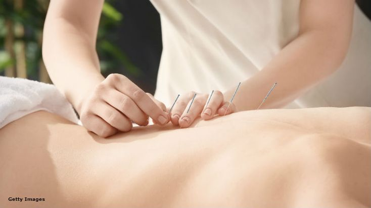 Acupuncture providing relief for PTSD