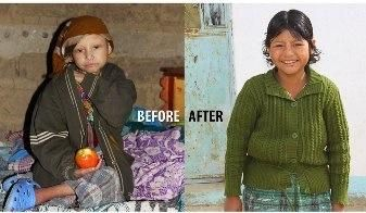 Photo of Aura who has been nourished back to health with the help of our specially made nutritious products - 1 year in the making of being totally transformed.