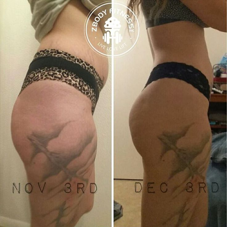 My client Bee and her 1 month progress using my booty program!! Already seeing changes and she's only 1/3 of the way done with the full 12 week program! To see others transforming their bodies  @zbodyfitnessinc #bootybyzoe #zbodyfitnessinc -  Reduce Cellulite  Lift, Tone, and Tighten  Accountability groups  Weekly schedule included  Video AND picture demonstrations  Can be done at home OR gym with only dumbbells required -