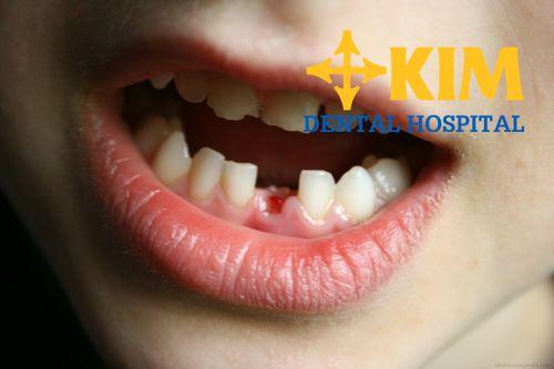 Gãy răng vĩnh viễn do nguyên nhân nào? - Hướng điều trị hiệu quả nhất