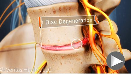 Most patients with lumbar degenerative disc disease will experience only low-grade continuous but tolerable pain that will occasionally intensify. For others, however, lumbar degenerative disc disease can cause severe pain and possibly disability.