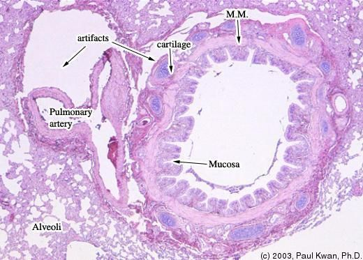 bronchi histology labeled google search res tract - 520×373
