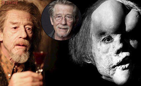 """Zemřel """"Sloní muž"""", herec John Hurt: Zabila ho rakovina slinivky"""