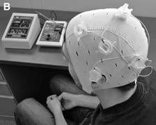 Transcranial direct current stimulation  in patients with #fibromyalgia significantly reduced perceived pain in a pilot trial.