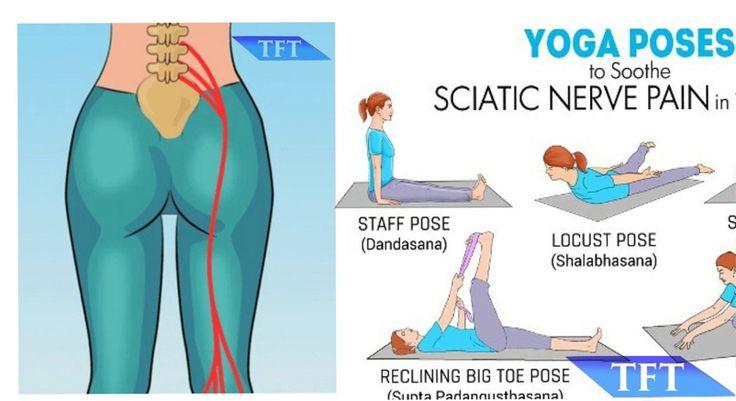 Yoga Sciatica Poses