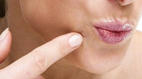 Home remedies for facial warts treatment. Get rid of warts on the face. Best ways to remove wart on face. Facial warts remedies.Treat facial warts naturally