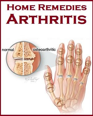 Home Remedies for Arthritis --- Visit the following link for more info: http://diabetesfree.actchangetransform.com --- #diabetes #diabetesfree #freeofdiabetes #diabetesremedies