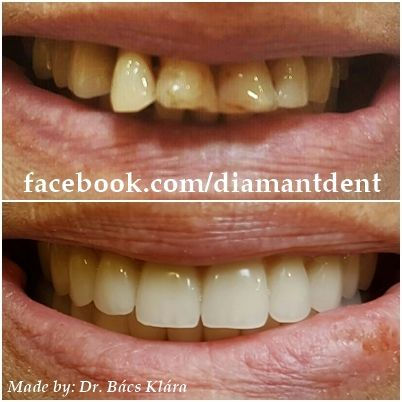 New Smile, new life :) Before After Photo! Have a Bright smile!  @diamantdent