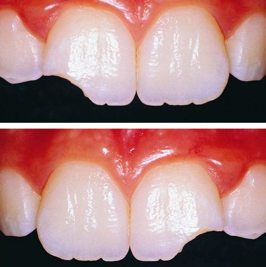 Скол зуба. ❓Можно ли лечить❓  Небольшие сколы и разломы не требуют немедленного лечения но , с ними всё-таки надо разбираться, чтобы у зуба не осталось острых краёв, которые будут надрезать мягкие ткани ротовой полости (язык, губы), а также по эстетическим причинам. В случае повреждения зубов, не требующих немедленной помощи, таких как простые разрушения зубов, вы можете назначить обычный визит к стоматологу. Хотя травматические повреждения зубов невозможно полностью исключить, определённые…