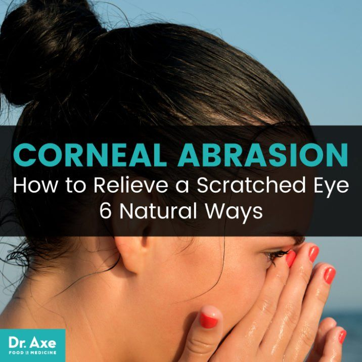 Corneal Abrasion 6 Natural Ways To Relieve A Scratched Eye Dr Axe Corneal Abrasion Eye Irritation Remedies Corneal