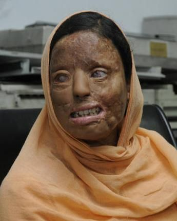 """""""Men throw acid on us with the intention of injuring or disfiguring us. Men throw acid on our bodies, burn our faces, smash our noses, melt our eyes, and walk away as happy men.  Acid attack is common in Pakistan, Bangladesh, India, Afghanistan, Nepal, Cambodia, and a few other countries. Men throw acid on us because men are angry with us for ending relationships and for refusing sexual harassment, sexual exploitation, proposals of marriage, demands for dowry."""" - Powerful image and words."""