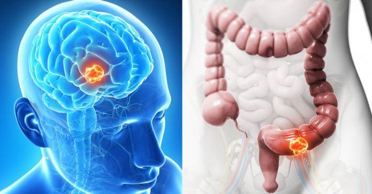 Czynników rakotwórczych jest sporo, ale wykluczając z diety ten jeden składnik działamy jak profilaktyka raka i obniżamy ryzyko.