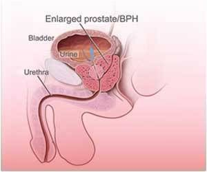 how to know if prostate cancer has metastisized after surgery