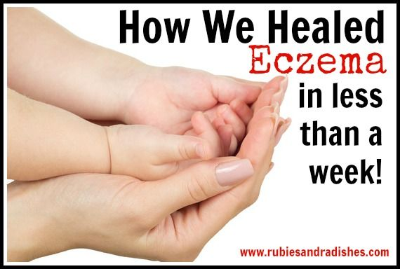 After 6 days of strictly following the protocol outlined in The Eczema Cure his eczema was nearly all cleared up.