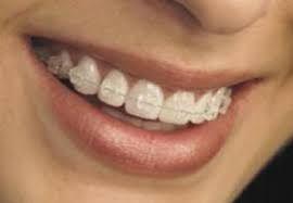 Resultado de imagen para ortodoncia brackets esteticos precios