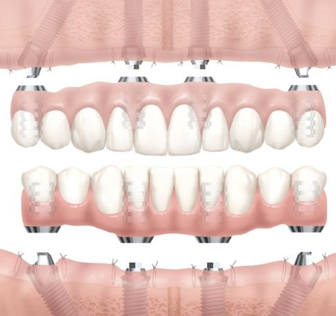 all on four dental implant or teeth in a day by best dentist in Princeton, NJ Dr. Reena M. Varghese