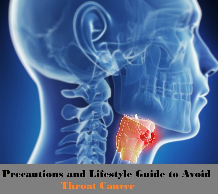 Precautions and Lifestyle Guide to Avoid Throat Cancer