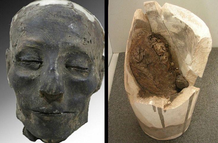 Mumie zeigt ältesten Fall von Herzversagen