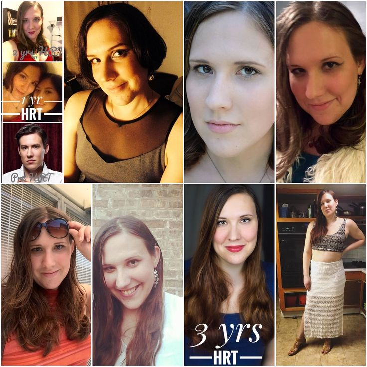 369 Best Mtf Before  After Images On Pinterest  Mtf Transition, Transgender And 1 Year-9138
