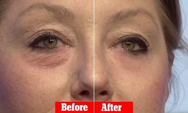 Old Korean Formula This 3 Ingredient Formula Disappears All The Wrinkles, Bags And Dark Spots In No Time I FEEL 5 YEARS YOUNGER –