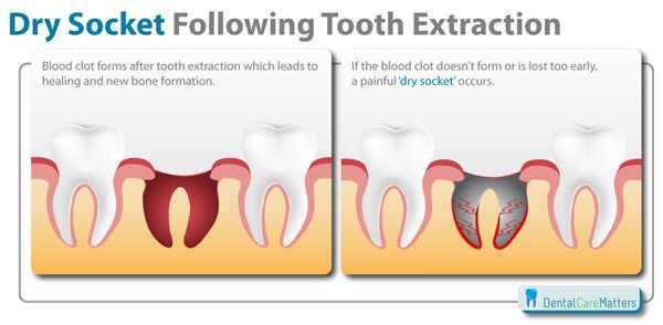 Luxuriant Wisdom Teeth Problems Oralhealthafrica Teethwhiteninghomemade Wisdom Tooth Extraction Tooth Extraction Wisdom Teeth