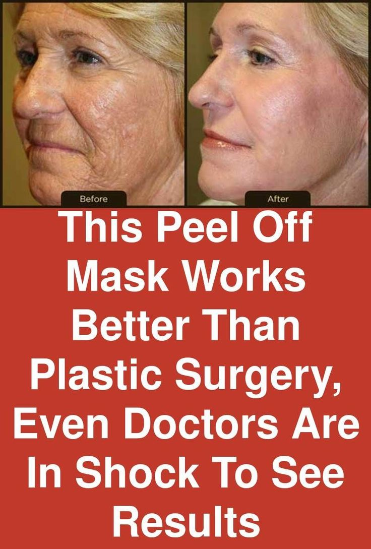 This Peel-off mask works better than Plastic surgery, even Doctors are in shock to see results